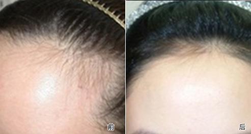 激光发际线脱毛会伤害皮肤吗