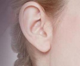 耳垂再造术适合哪些人
