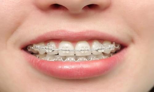 沈阳伊美尔牙齿矫正会有哪些并发症