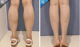 重庆星范丽格瘦小腿成功案例