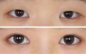 成都高新春天韩式双眼皮成功案例