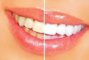 山西朔州丽都牙齿美白术后如何护理
