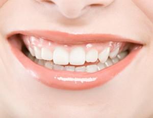 山西朔州丽都牙齿矫正安全性与哪些因素有关