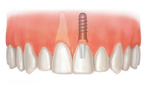 沈阳伊美尔种植牙过程需要多久