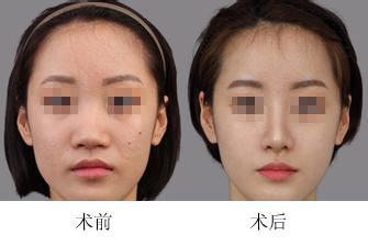 德阳金荣代氏综合美鼻术成功案例