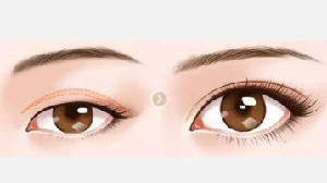 埋线双眼皮多久可以洗脸