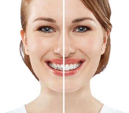 如何去判断牙齿矫正是否成功