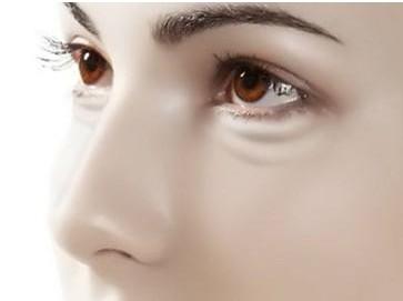 去黑眼圈手术的方法有哪些呢