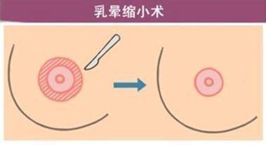 乳头乳晕缩小术可恢复正常粉红吗