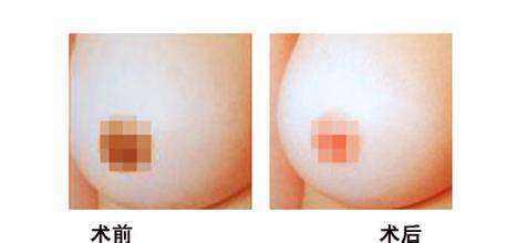 沈阳名流乳头乳晕漂红术后多久可恢复