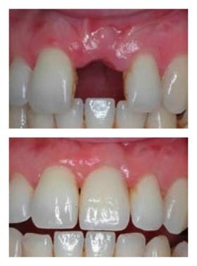 临汾丽都种植牙成功案例
