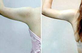 手臂吸脂会有针扎一般的感觉吗