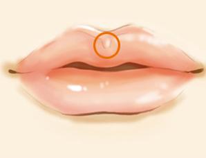 唇珠成形术的安全性受什么影响