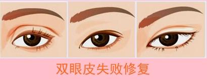 双眼皮修复手术何时进行比较好