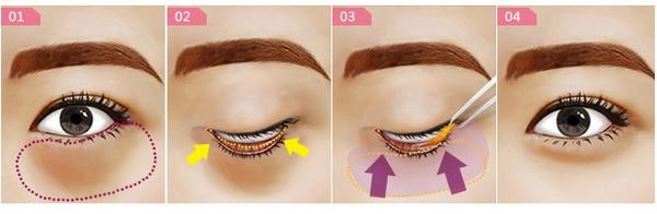 山西太原美媛荟祛眼袋手术后的恢复时间长吗