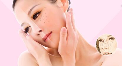 复合彩光祛斑在七到十天内皮肤就可以恢复正常吗