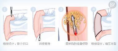 手臂吸脂术可以避免疼痛吗