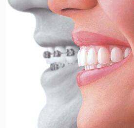 牙齿矫正有年龄上的限制吗