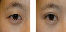 重庆光博士双眼皮成功案例