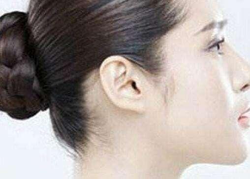 副耳整形术有哪些禁忌症