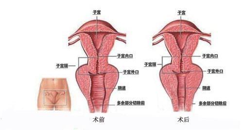 沈阳盛京时尚阴道紧缩术适应症是什么