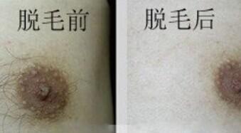 沈阳盛京时尚乳晕脱毛术有哪些方法