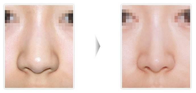 沈阳和平蓝天鼻翼缩小术多久可化妆呢