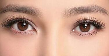青岛王博士韩式双眼皮需要拆线吗