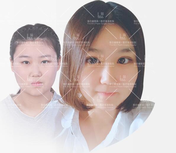 北京联合丽格吴焱秋重睑术成功案例