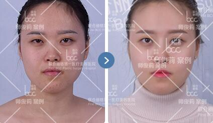 北京联合丽格线雕隆鼻成功案例