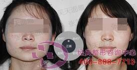 北京圣嘉荣下颌角整形成功案例