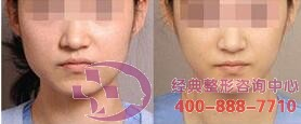 北京圣嘉荣瘦脸针成功案例