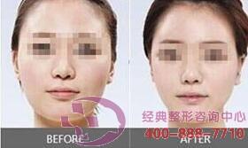 北京圣嘉荣面部吸脂成功案例