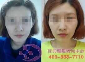 北京圣嘉荣尿酸除皱成功案例