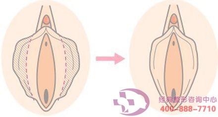 小阴唇肥大矫正手术的安全性怎么样