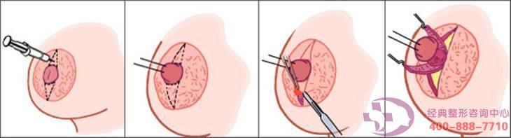 乳头再造术会影响正常哺乳吗