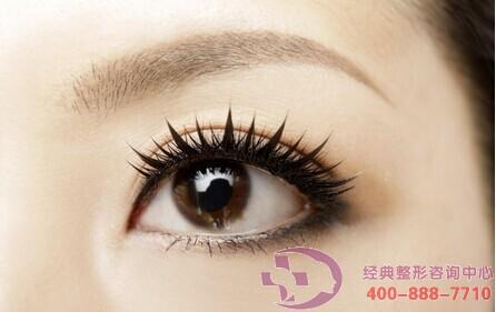 肿眼泡可以做双眼皮手术吗