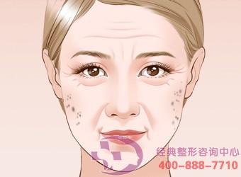 激光治疗老年斑效果好吗