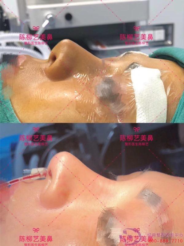 陈柳艺美鼻,一个鼻头处皮肤被假体快顶穿的成功案例