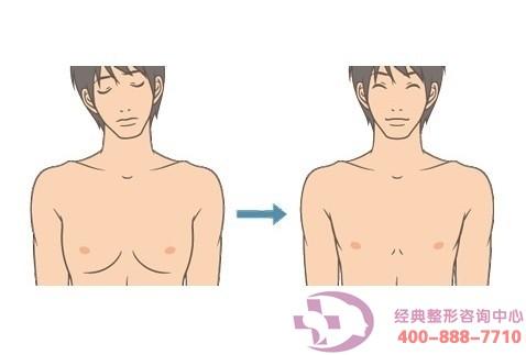 哪些情况可做男性乳腺增生症切除术