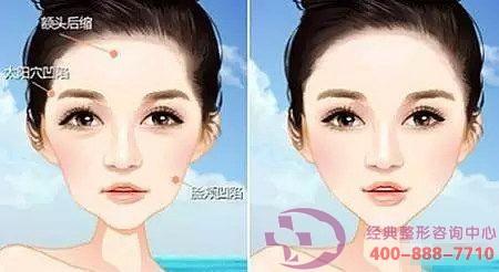 面颊部填充术有什么效果呢