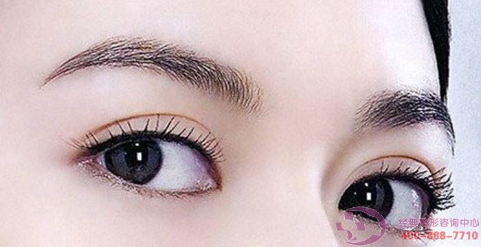灵动双眼皮手术有哪些类型