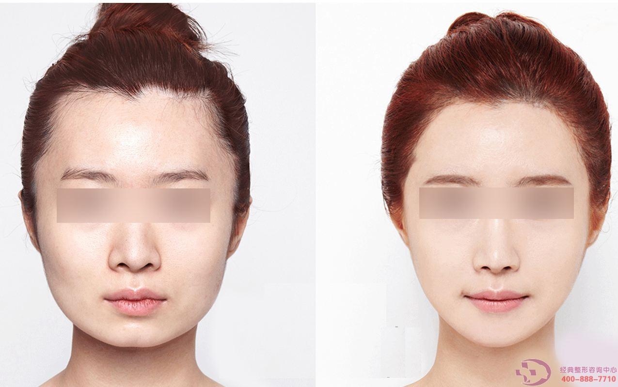 去咬肌瘦脸手术的恢复时间如何