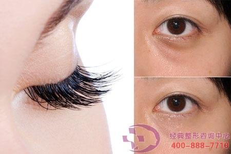 大连艺星睫毛种植会影响眼睛发炎吗