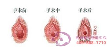 北京三仁处女膜修复成功案例,还你美丽人生