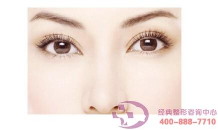 丹东晶馨双眼皮术需要忌口多久