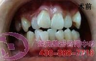 贵阳美莱牙齿矫正成功案例,改善自己的牙齿面貌