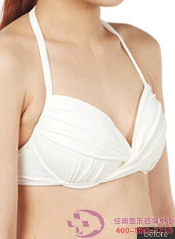 铜仁白领科尔曼自体脂肪丰胸成功案例,从A罩杯到D罩杯