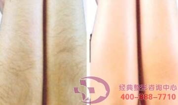 丹东晶馨全身脱毛多少钱与什么有关