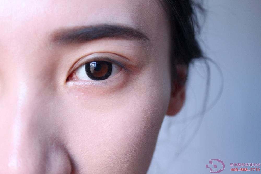 丹东晶馨眉毛种植后毛发质量会变吗